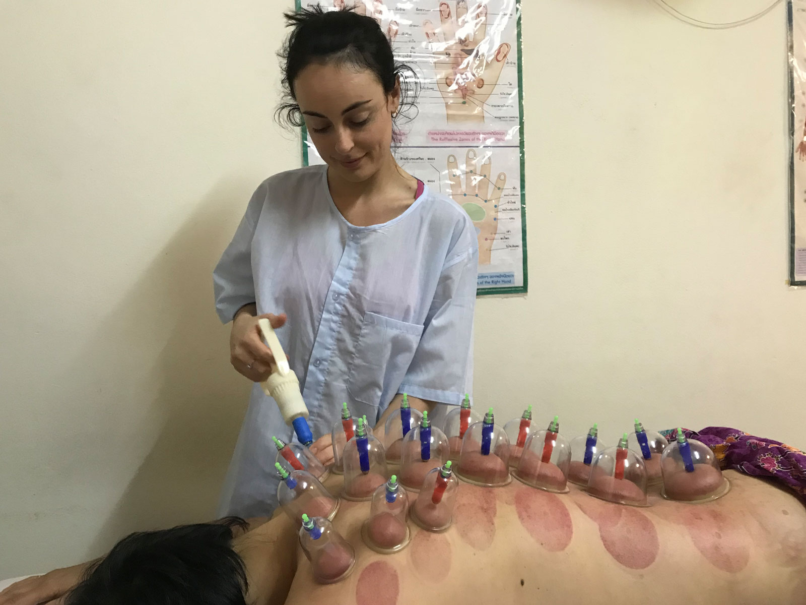 Learn Cupping Therapy Course in Chiang Mai