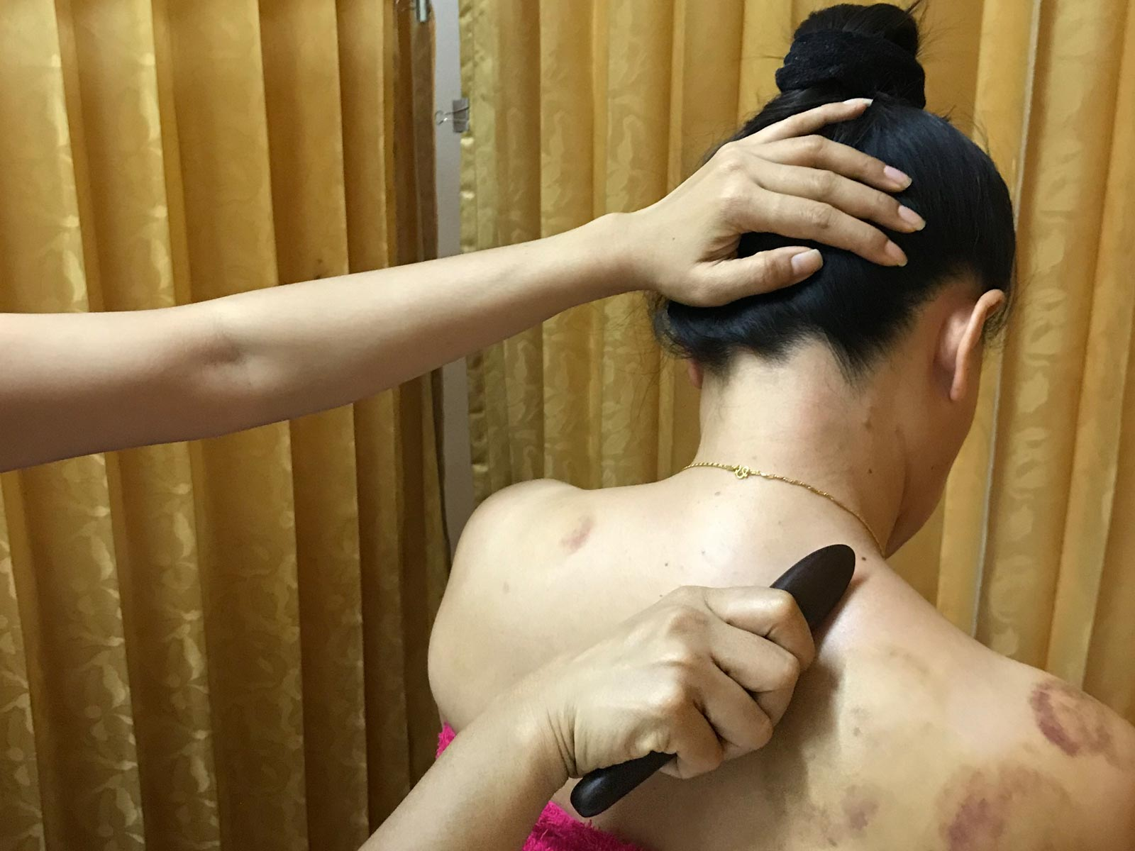 Learn Gua Sha Massage Course in Chiang Mai, Thailand